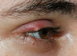 Does Nulastin Really Help Grow Natural Eye Lashes? - Does