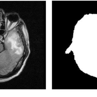 (PDF) Hybrid approach for brain tumor detection and