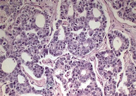 Pathology Outlines - Acinar cell carcinoma